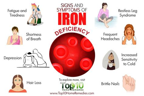 10 Signs And Symptoms Of Iron Deficiency  Top 10 Home. How To Develop Apps For Iphone. 100 Centre Street New York Ny 10003. Cincinnati Logo Design J Renee Nursing School. Health Insurance Quotes Tx Labor Lawyers Nyc. Android Programming Apps Mindy Kaling Twitter. Nebraska Workers Compensation Court. College Of The Desert Nursing. Cheap Voip Calls To Uae Italian For Good Night