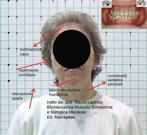 Tralicci Alta Tensione Vicino Abitazioni Articolazione Temporo Mandibolare E Postura 28 Images