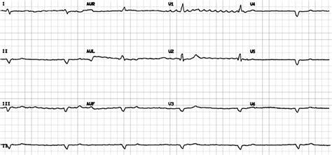 heart rhythm conundrum  bmj