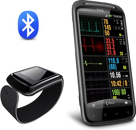 CardioDefender Smartphone-based ECG, a 21st Century Holter