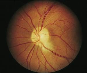 Acquired Retinal Myelination In Neurofibromatosis 1