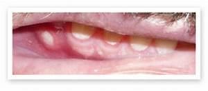 Gum canker sore