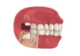 This assumes that the wisdom tooth has a single root, and only local anesthesia is needed. Wisdom Teeth Removal Cost   Wisdom tooth extraction cost