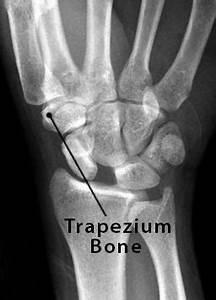 Trapezium Bone Definition  Location  Anatomy  Diagram