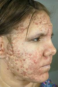 Image Gallery subclinical acne