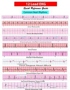 lead ekg pocket card aprn world  amazon