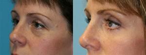 Blepharoplasty Cape Cod Massachusetts Eyelid Surgery