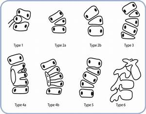 Drawings Of The Six Types Of Vertebral Anomaly As Defin