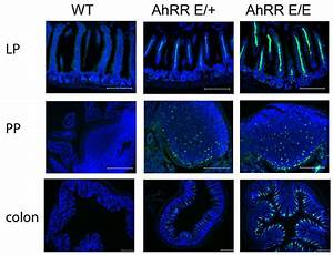 Study shows how an important intestinal immune response ...