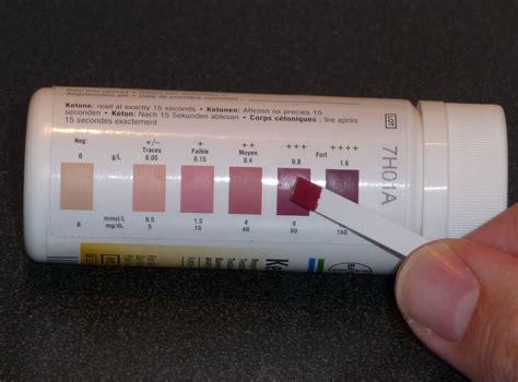 ketoacidosis  people  diabetes