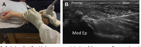 Figure 2 from Ultrasound-Guided Elbow Procedures ...