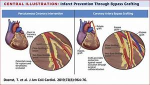 Pci And Cabg For Treating Stable Coronary Artery Disease