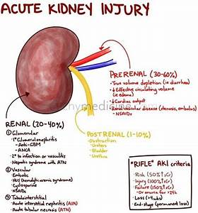 47 best images about Acute Renal Failure on Pinterest ...