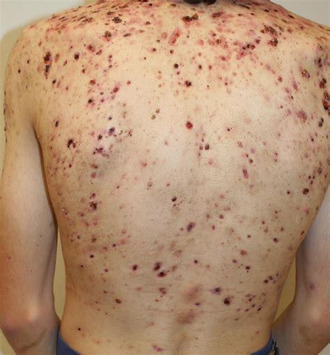Epidermoid Sebaceous Cysts Brazil Pdf Ppt Case