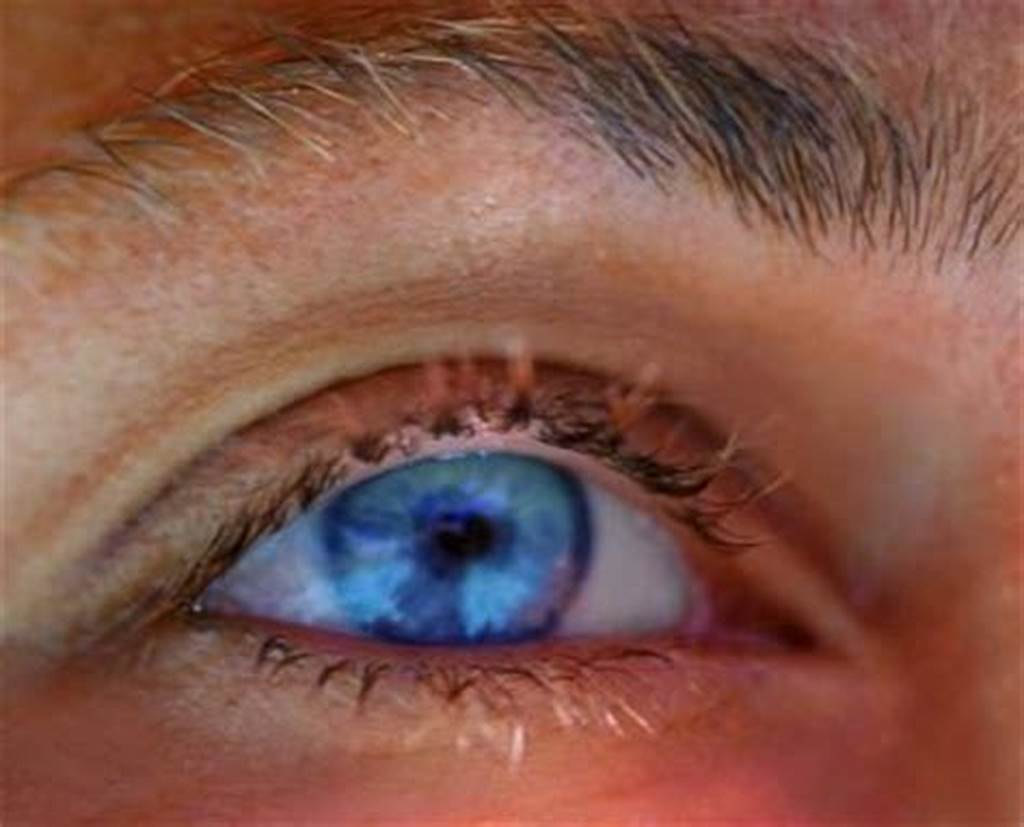 #Dilated #Pupils #Causes