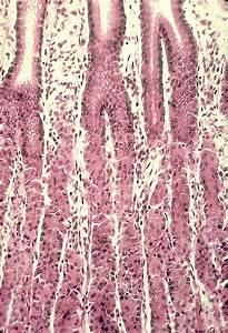 Esophagus  U0026 Stomach Color Images