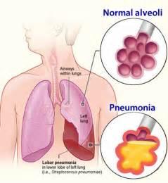Pneumonia - Risk Factors, Symptoms, Diagnosis and Treatment Pneumonia