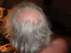I Have A Bald Spot About 2quot In Dia The Bald Spot Is At The