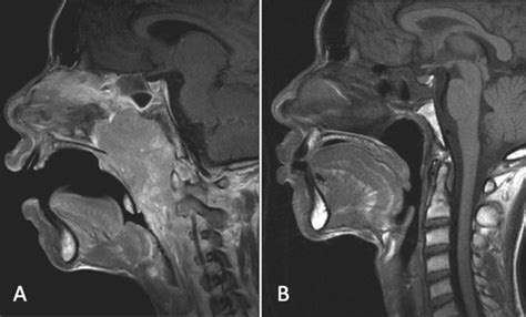 nasopharyngeal carcinoma   weighted post gadolinium