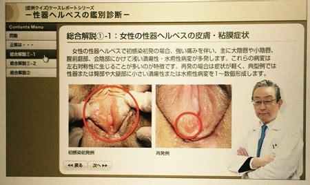 精 器 ヘルペス 女性 早く 治す 市販 薬