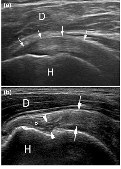 Ultrasound of the shoulder. a Normal appearance of ...