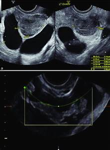 Fallopian Tube On Ultrasound Identified Because Of  A