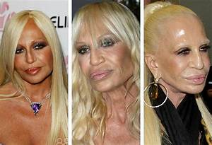 Plastic Surgery Cost More Than What These Celebrities Imagined