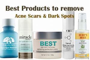 Other, Dark spots and The o'jays on Pinterest