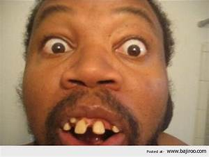 Fat Ugly Face Most Ugly People In World Funny Images Fun ...