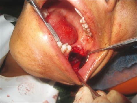 surgical enucleation  curettage   lesion