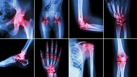 prolotherapy     solution  chronic pain