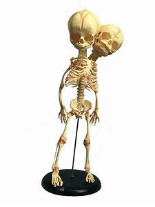 Economy Human Baby Conjoined Siamese Twin Skeleton