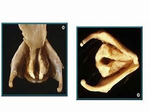 Larynx Grossiing  Total Laryngectomy
