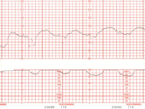 electronic fetal heart rate monitoring journal