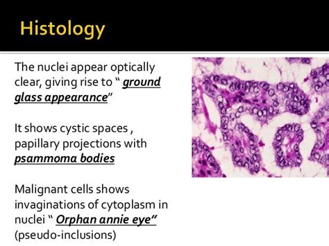 Ground Glass Nuclei Orphan Annie Neoplasms Of Thyroid