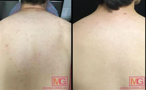 Back Acne Scars (BAcne) Treatment in NYC - Dr. Michele ...