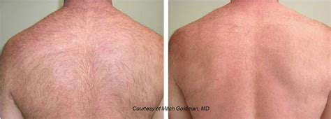 laser hair removal for light hair medical spa treatments providence photos