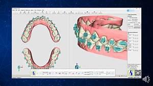 Orthodontic Bracket Bonding Guide Design