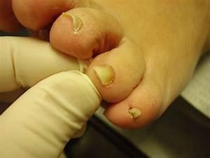 Лечить грибок ногтей на ногах дома