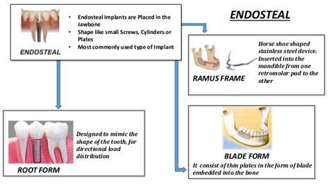 5 shoe types on types of dental implant