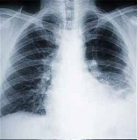 mesothelioma treatment asbestos cancer symptoms tests research