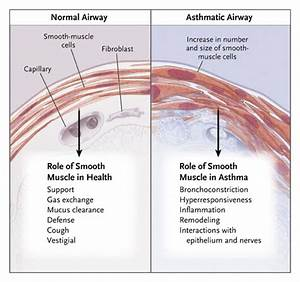 Airway Smooth Muscle as a Target for Asthma Therapy | NEJM