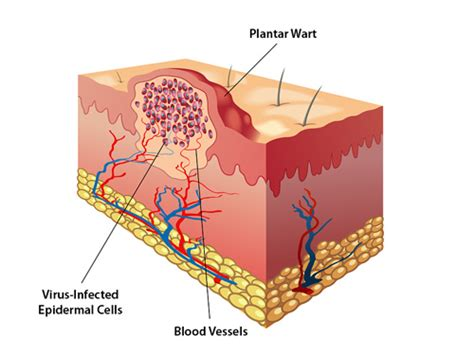 How do warts form and how are they treated - Coastal ...