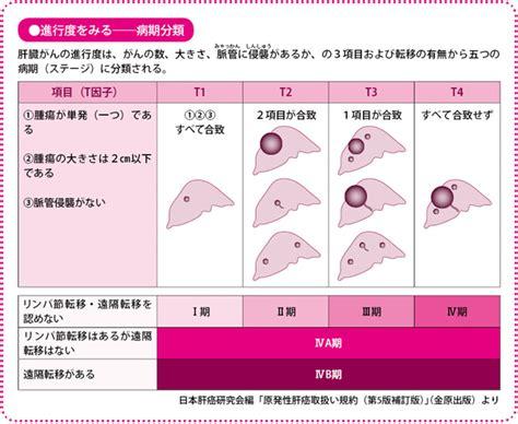 肝臓 が ん 初期 症状