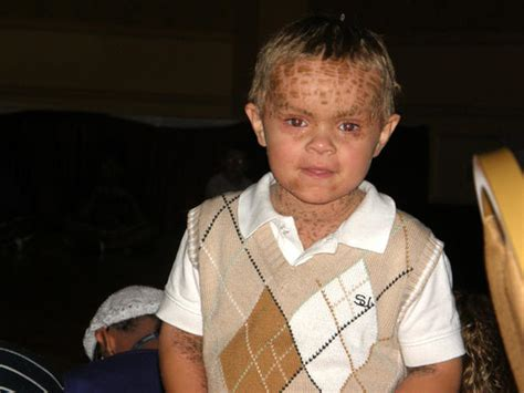 harlequin ichthyosis  uncommon skin conditions cbs news