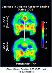 Electric Stimulation Of Brain Releases Powerful  Opiate