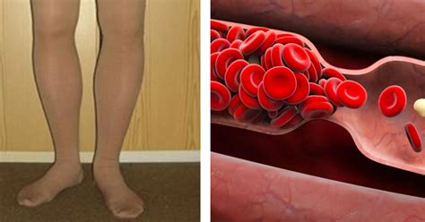 8 warning signs of a potential blood clot that you shouldn