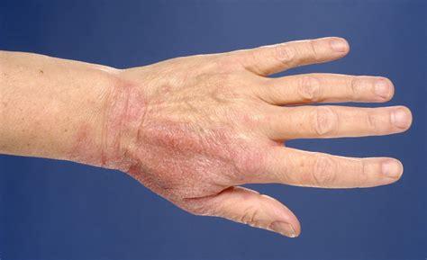 Allergische reactie op handen