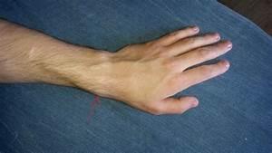 Лечение от боли в лучезапястном суставе