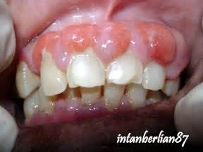 Multiple Periodontal Abscess In Diabetic Patient Berserta